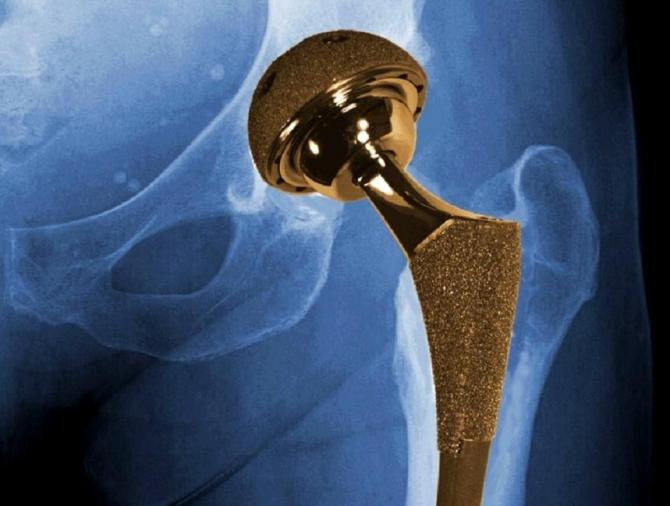 Ask If Your New Hip Joint Has a Good Track Record Before Surgery