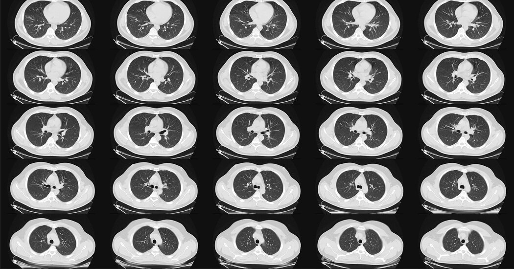 Lung Cancer Scans Are Recommended for People 50 and Older With Shorter Smoking Histories