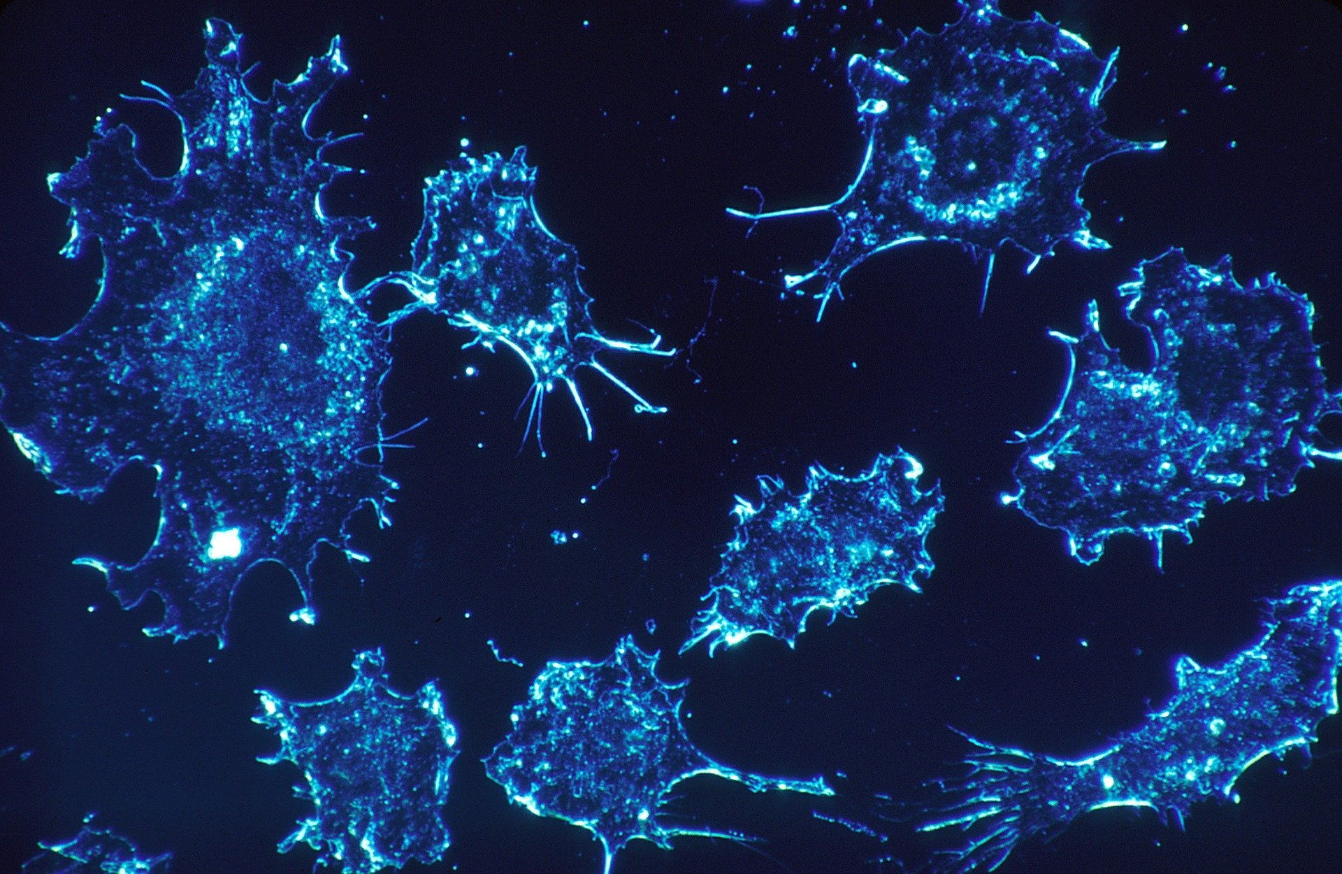 Research reveals new effects of oxygen deprivation in cancer cells