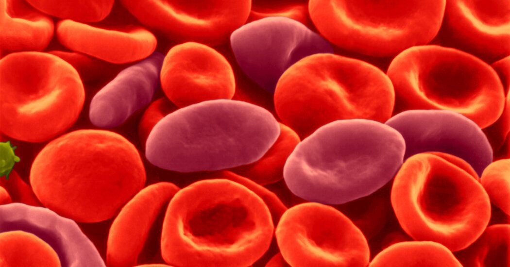 Sickle Cell Treatment Not Linked to Cancer, Researchers Say