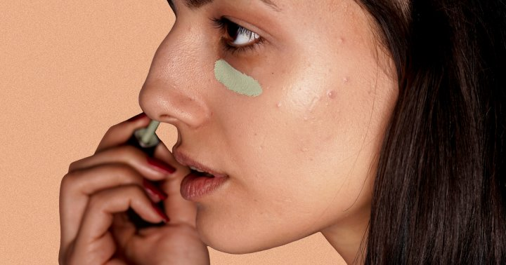 The Foolproof Step Before Concealer That Makes Discoloration Vanish